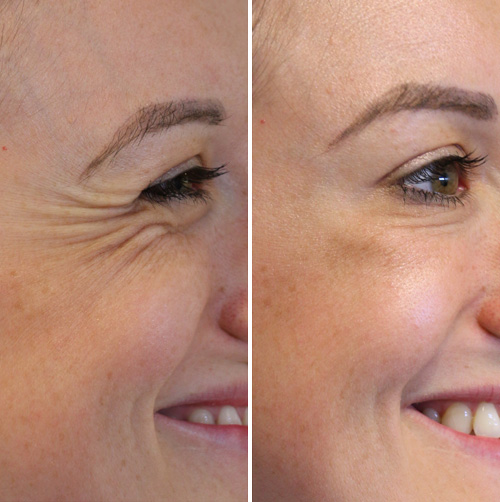 Before and After Antiwrinkle Treatment for Crows Feet