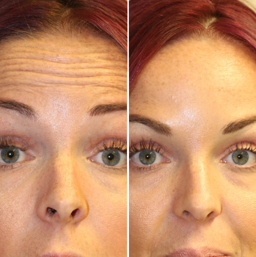 Before and After Antiwrinkle Treatment for Forehead Lines